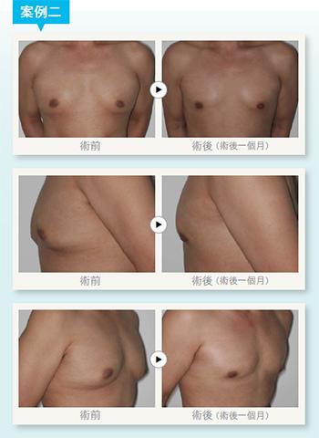 男性女乳症手術3.jpg