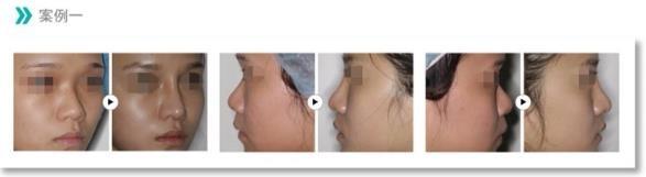 客製化隆鼻2