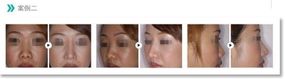 客製化隆鼻3