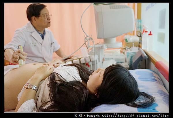 【台北羊膜穿刺】柯滄銘婦產科診所 羊膜穿剌不用5分鐘