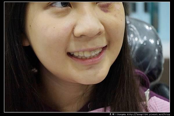 【彰化牙齒矯正推薦】Invisalign 隱適美隱形牙套 陳長泰牙醫診所