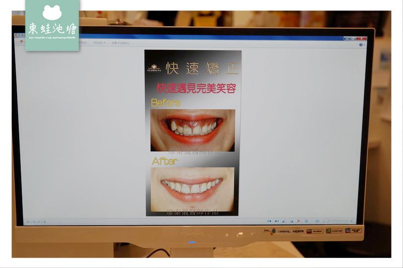 【新竹快速矯正推薦】竹北真美牙醫診所 美容矯正術前評估 晶鑽全瓷微笑設計
