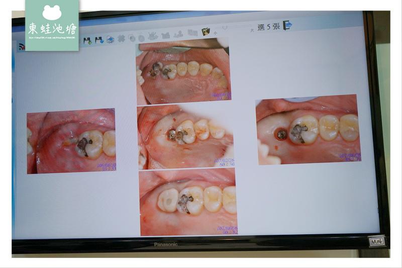 【植牙心得分享】歷經365天的植牙心路歷程 新竹日光翡麗牙醫診所