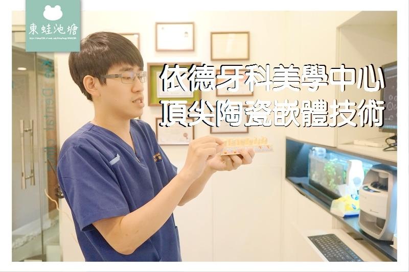 【頂尖陶瓷嵌體技術】如拼圖般補上牙齒的缺損處 依德牙科美學中心