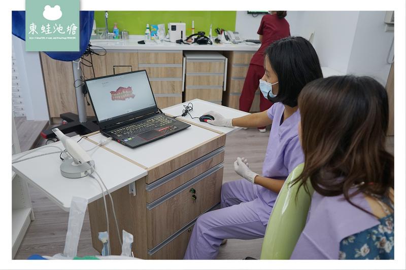【林口隱形矯正推薦】隱適美術前評估心得分享 康澤牙醫診所