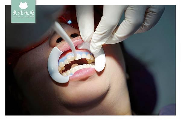 【桃園中壢牙齒美白推薦】新當代牙醫冷光美白流程心得介紹