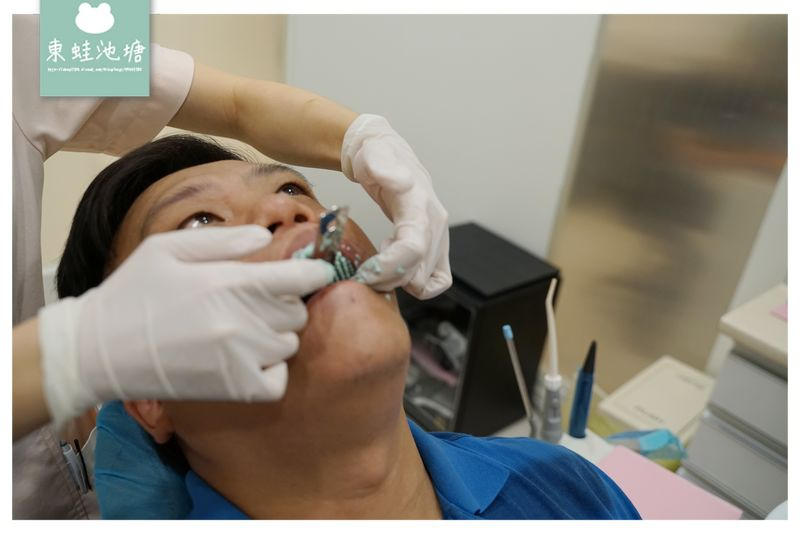 【竹北全瓷冠貼片推薦】全瓷牙冠術前評估 取模咬蠟流程介紹 竹北真美牙醫診所