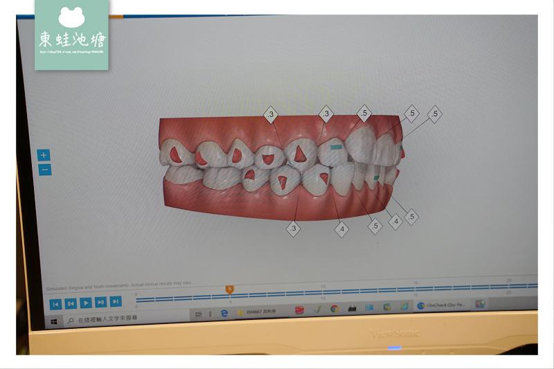 【林口隱適美推薦】康澤牙醫診所 牙齒矯正專科 隱適美資料收集評估