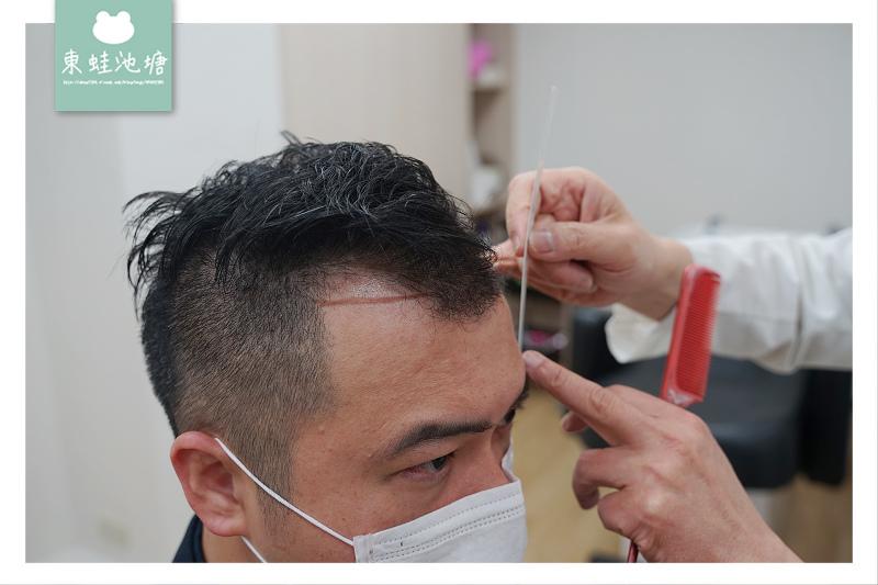 【台北植髮診所推薦】植髮諮詢心得分享 全台唯一美國植髮醫學會考試委員 萌髮診所