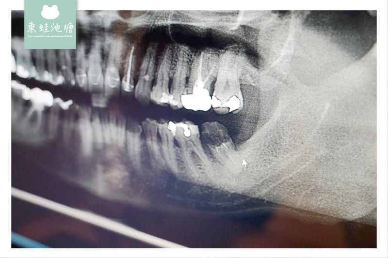 【桃園植牙推薦】藝文特區植牙好選擇 藝品牙醫診所