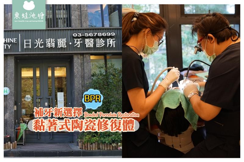 【新竹補牙推薦】美觀耐用微創齒雕技術 BPR黏著式陶瓷修復體 日光翡麗牙醫診所