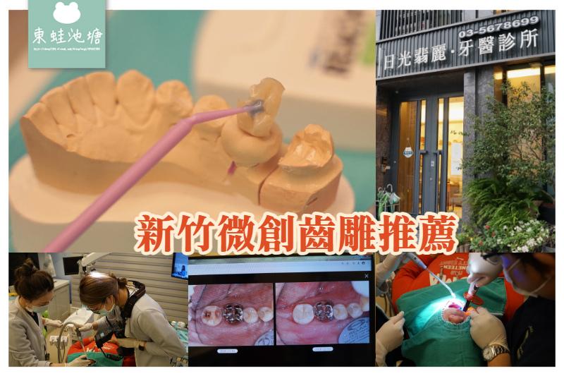 【新竹微創齒雕推薦】量身定做3D齒雕嵌體 告別樹脂與銀粉 日光翡麗牙醫診所