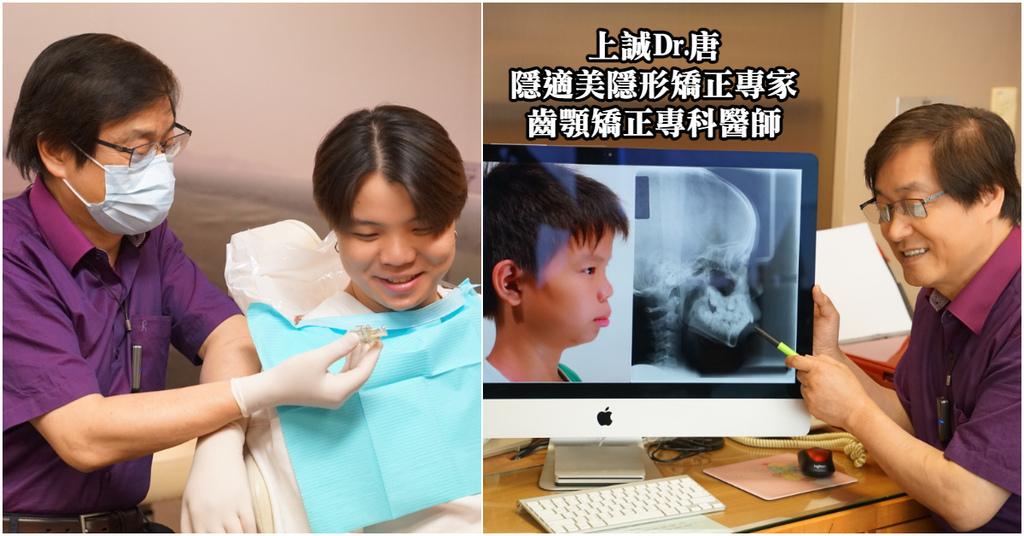 【台中隱形矯正推薦】齒顎矯正專科醫師 隱適美隱形矯正專家 上誠齒顎矯正中心