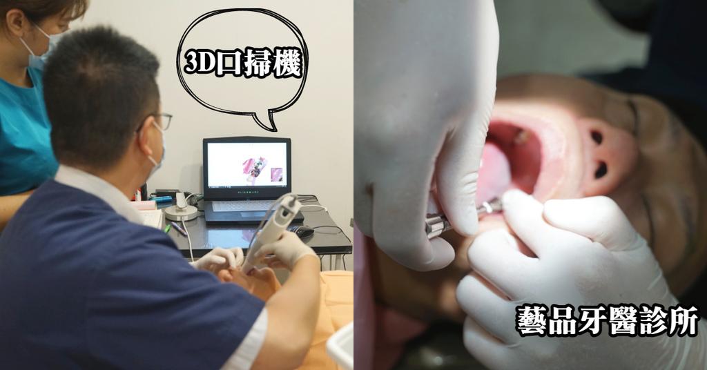 【桃園藝文特區植牙推薦】3D口掃取模超方便 裝設牙冠心得分享 藝品牙醫診所