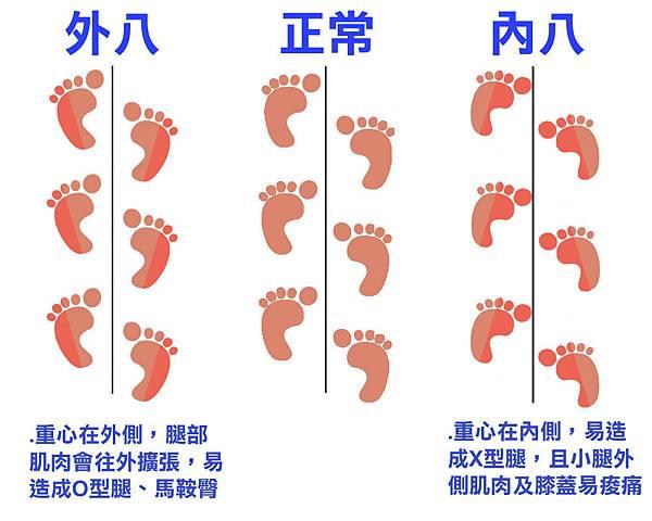 走路姿勢造成腿部外觀圖.jpg