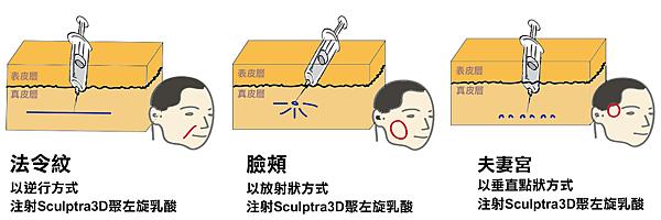 注射方法圖.png