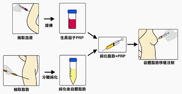 施打流程示意圖著色.png