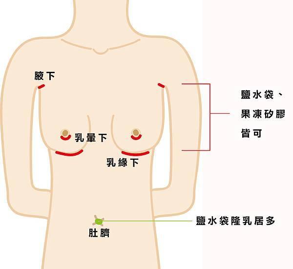 義乳植入切口位置示意圖.jpg
