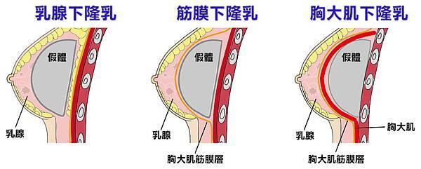 義乳擺放位置位置示意圖.jpg