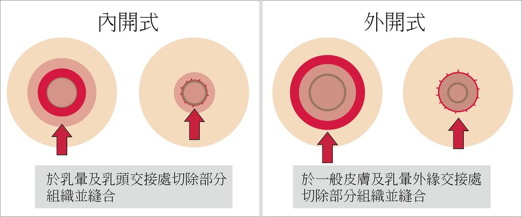 乳暈兩者手術比較圖.png