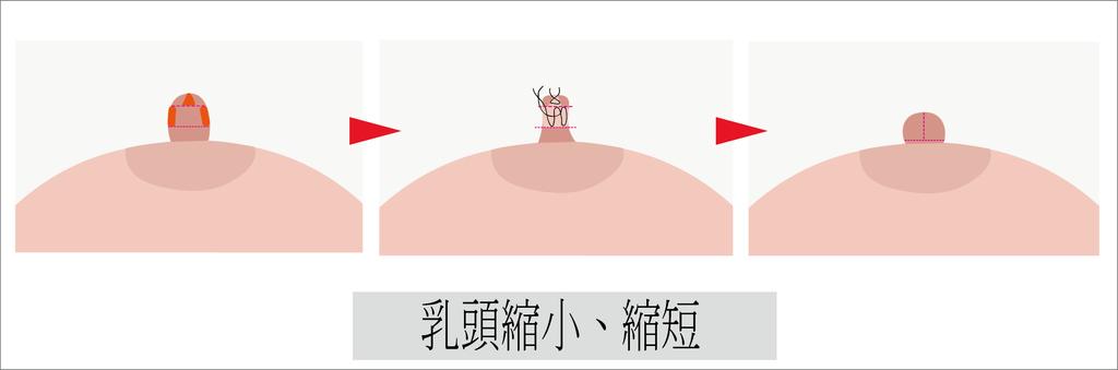 乳頭縮短、縮小.png