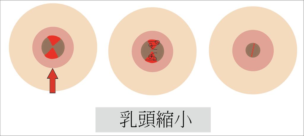 乳頭縮小手術.png