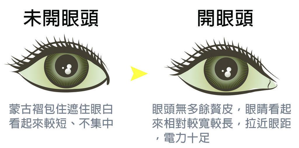 開眼頭手術示意圖.jpg