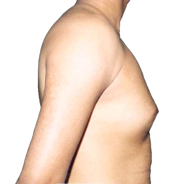 乳腺型.png