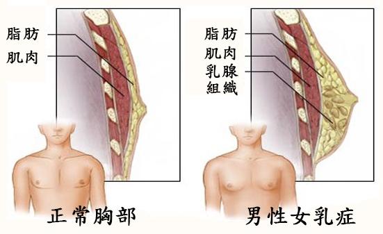 正常VS男性女乳症組織圖.jpg