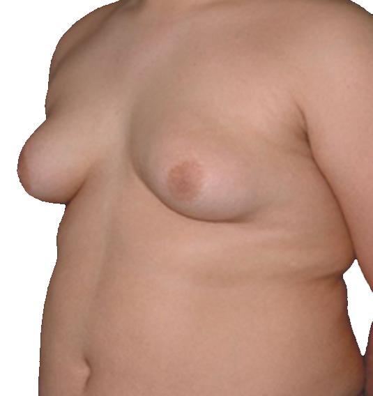 脂肪型.png