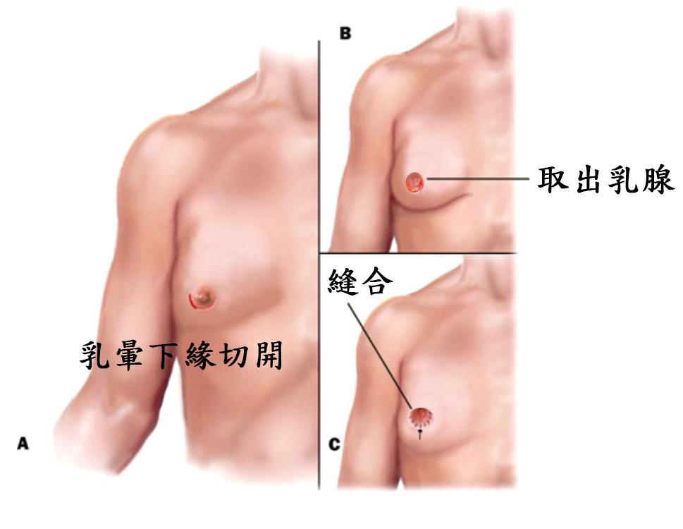取乳腺手術示意圖.png