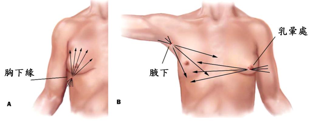 抽脂手術示意圖.png