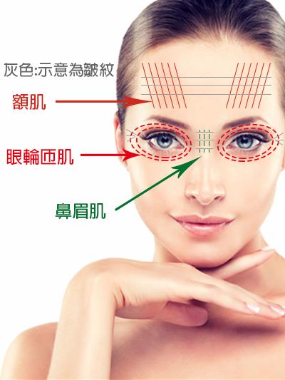 肌肉皺紋示意圖.png