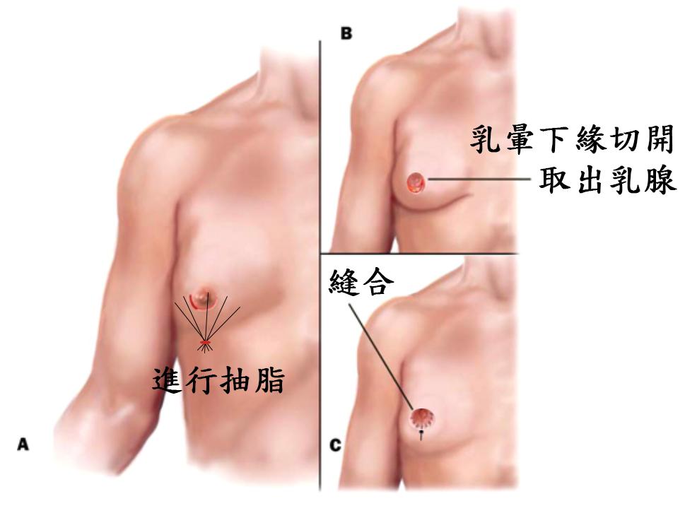 取乳腺+抽脂手術示意圖.png