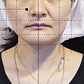 埋線拉提埋線拉皮嘴邊肉法令紋緊緻V臉膠原蛋白蘋果樹醫學診所3.png