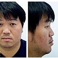 蘋果樹醫學診所改造肥胖骨架755蜂巢皮秒雷射ELLANSE依戀詩02.jpg