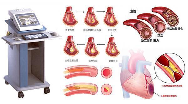 PTG血管彈性分析