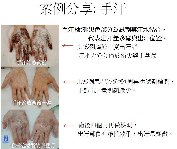 手汗案例分享