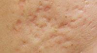 凹陷型疤痕