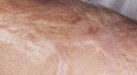 孿縮型疤痕
