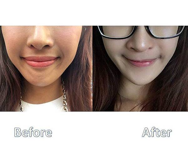 利用上顎單顎手術改善唇形及笑容 圖3.jpg