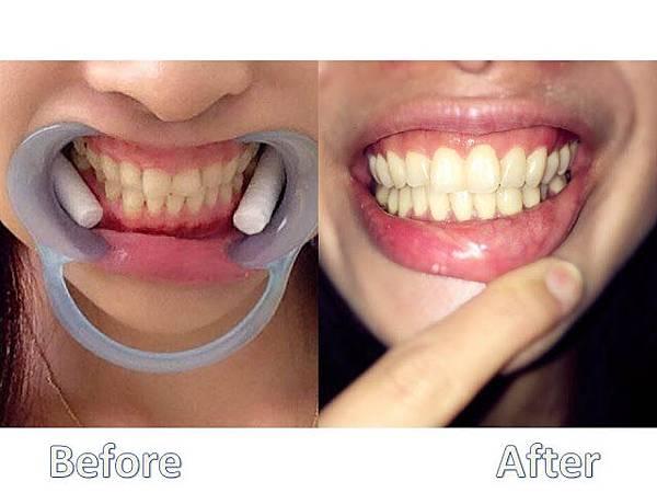 利用上顎單顎手術改善唇形及笑容 圖4.jpg