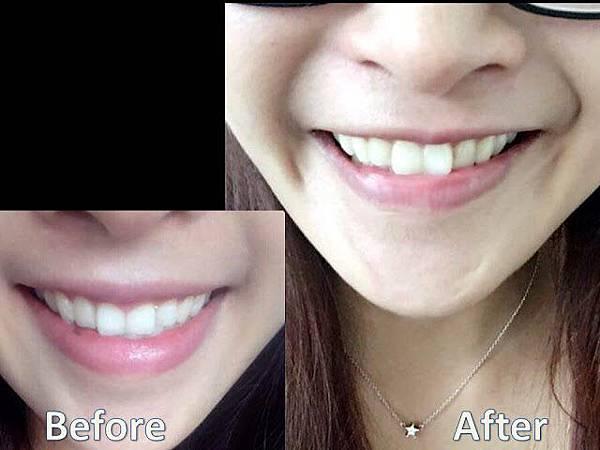 利用上顎單顎手術改善唇形及笑容 圖5.jpg