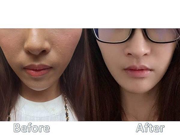 利用上顎單顎手術改善唇形及笑容 圖2.jpg