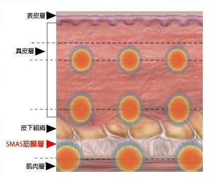 筋膜層.png