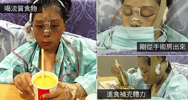手術補充熱量.jpg