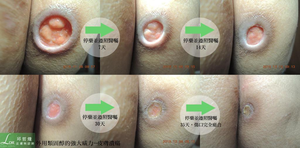 _外用類固醇的強大威力之一--皮膚潰瘍_病灶復原.jpg