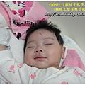 4M0D-寶寶的神龍抓蚊手 (程程在半夜睡覺時打到蚊子耶!不過也被叮到了~~)98.11.7