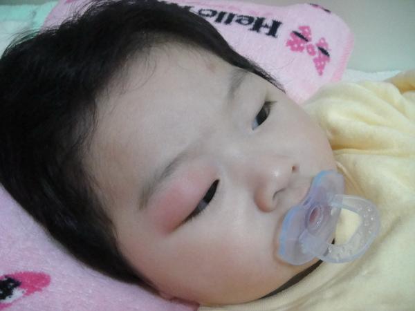 (1/27)早上,雖然有擦藥好像沒什效,腫的眼睛都快張不開了>_<