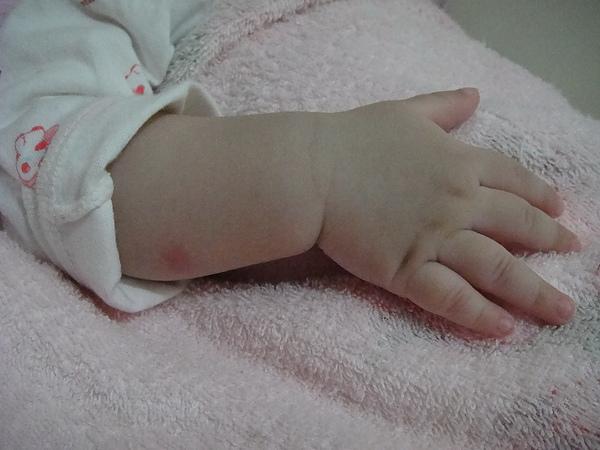 8M15D-程程小手手(手也被蚊子叮到了>_<)99.3.22